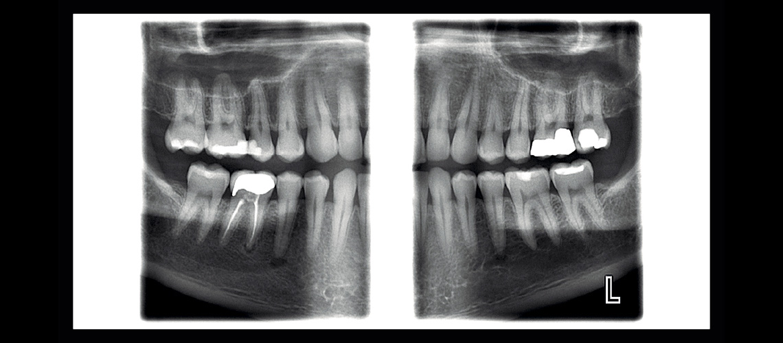 ProMax Clinical Image 5